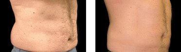 before and after photos of stomach fat freezing treatment