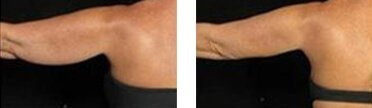 before and after photo of fat freezing treatment to remove unwanted flabby arm fat