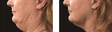 before and after photos of double chin removal with cryolipolysis machine